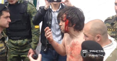 Разбитая голова фаната Спартака во Владикавказе